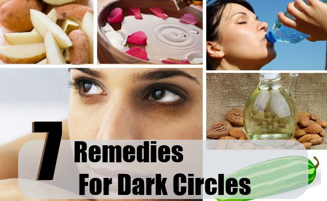 Home Remedies For Dark Circles - Natural Treatments & Cure ...