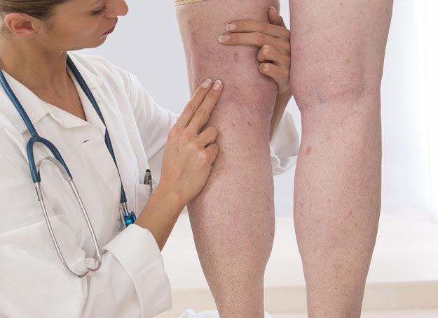 Smaruj nogi kremami zawierającymi rutynę i wyciąg z kasztanowca /123RF/PICSEL