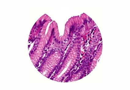 Boyama Solüsyonları Patoloji Bio Optica ürünler
