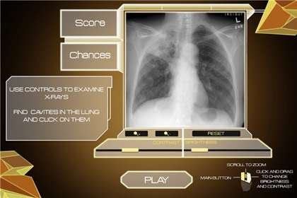 Tuberculosis video game battles world's oldest disease