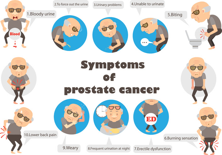 Ironwood Urology S Blog Prostate Cancer Symptoms You Can T Igno