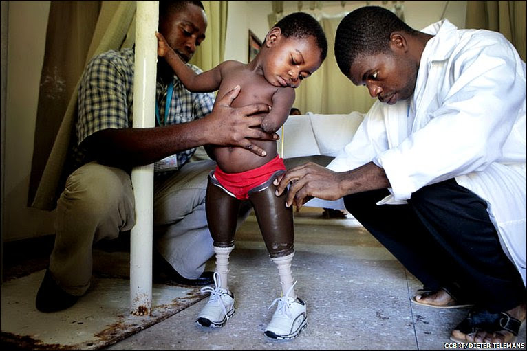 Ghanaian prosthetist Koho Moses Kofi and a colleague helping Amina to stand upright © CCBRT/DIETER TELEMANS