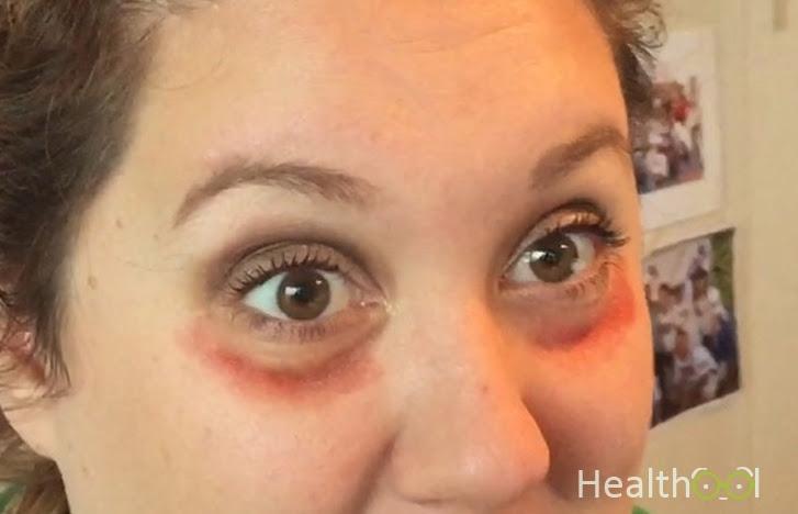 Red Circles Around Eyes Causes, Remedies, Get Rid of ...