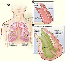 Bronchiectasis NHLBI.jpg