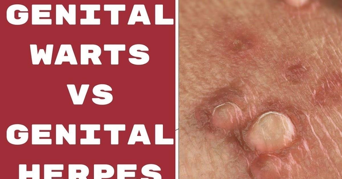 varicose bărbați genitali
