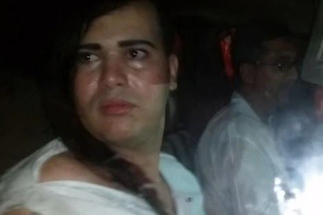 تعنيفُ مثليٍّ وسط مدينة فاس يثير استنكارا حقوقياً