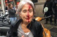 Εκρηκτική η κατάσταση στην Καταλονία -  Εν μέσω αιματηρών επεισοδίων το δημοψήφισμα -  Εκατοντάδες οι τραυματίες