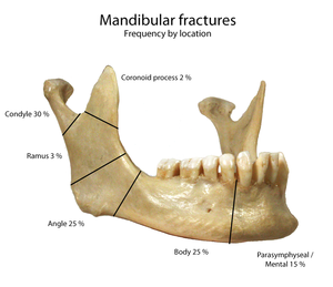 Photo of the mandible demonstrating the freque...