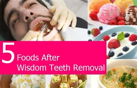 tooth extraction  dental check