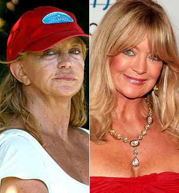 Goldie Hawn before and after pictures (image hosted by estergoldberg.com)