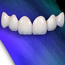 labo răng giả tphcm