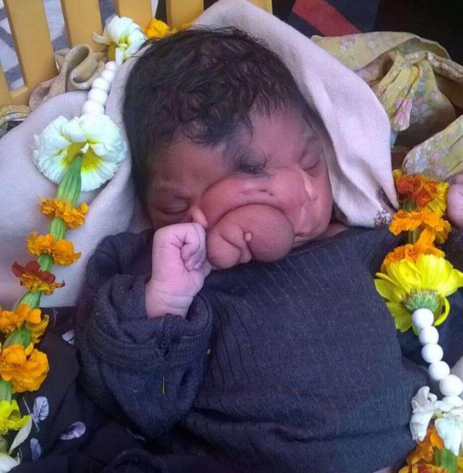 Bebê é comparado a deus Hindu após nascer com tromba de elefante