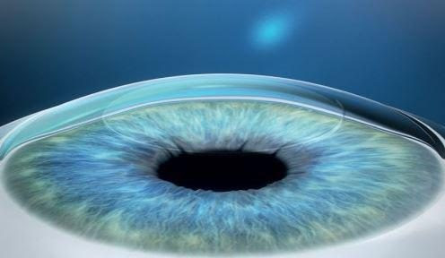 The large list of waiting patient for a cornea donation can be resolved by cornea transplant new 3D technique printed with bioink