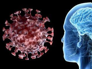 Φωτογραφία για Εγκεφαλικά επεισόδια και άλλες επηδράσεις στο νευρικό σύστημα σε ασθενείς με κοροναϊό