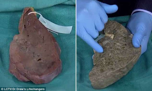 In the clip, Dr Pinsky shows a healthy liver (left) and one of someone who died of cirrhosis (right) - scarring of the organ, which can be fatal