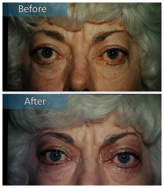 Dr Jeffrey Edelstein Thyroid Eye Disease