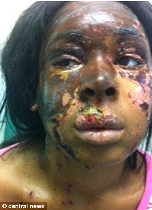 Naomi Oni (pictured) had sulphuric acid thrown on her in an attack inspired by the assault of Katie Piper