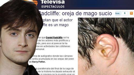 daniel radcliffe actor con los oídos sucios