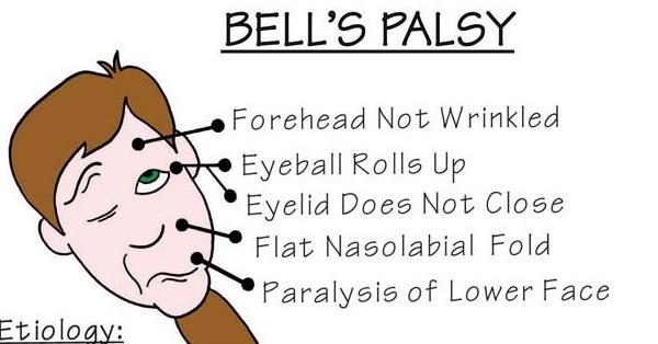 Nursing Mnemonics Bells Palsy StudyPK