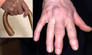 Sausage fingers to knobbly knuckles: The causes of hand