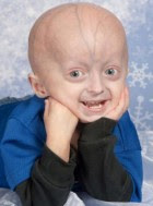 A 4-year-old boy with Hutchinson-Gilford Progeria Syndrome. (The Progeria Research Foundation)