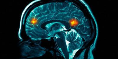 Telepatia i internet aconsegueixen comunicar dos cervells a distància