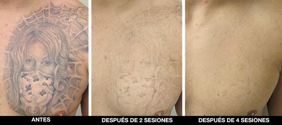 Eliminacion Tatuajes Laser Lembruix Barcelona