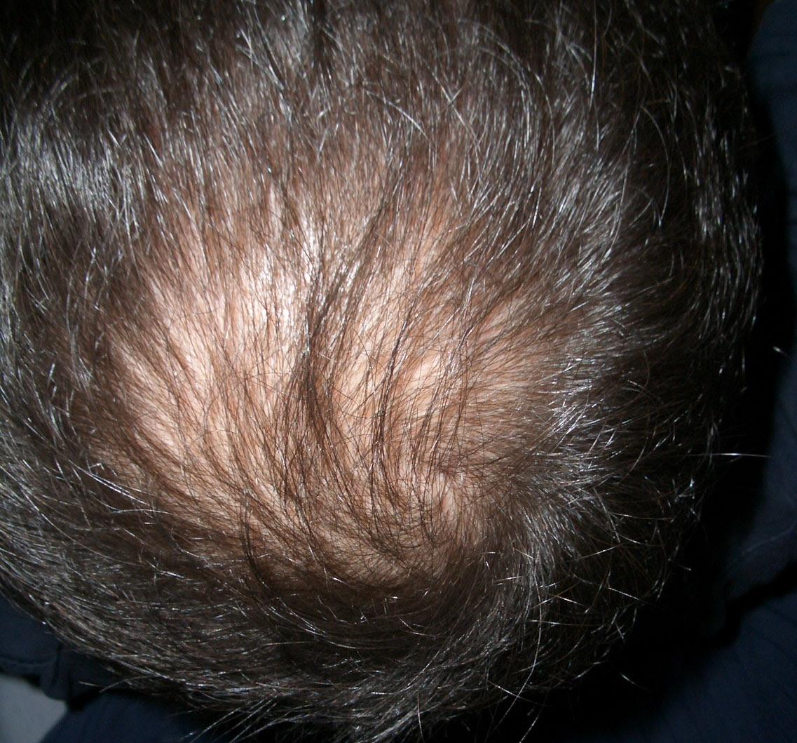 Frisuren Mann Lichtes Haar