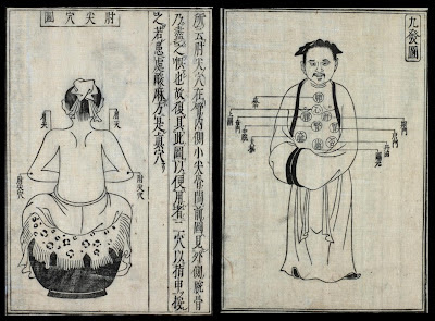 Japanese rare medical text bodily schematics