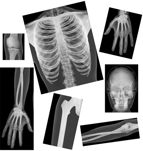 Biology/Life Science - True-to-Life Human X-Rays