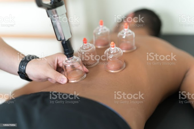Chinese Therapy Cupping