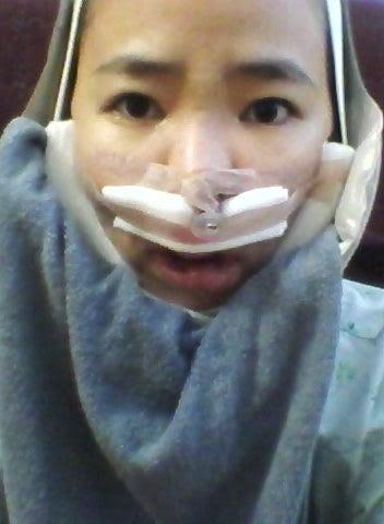 しゃくれ顎、非対称、面長、両顎手術