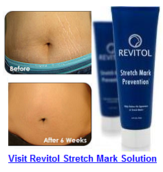 Revitol Stretch Mark Cream Watsons Philippines Best Way To Rid Of Cellulite
