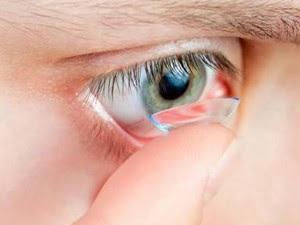 Cuidados  na utilização das lentes de contato. (Foto: Divulgação)