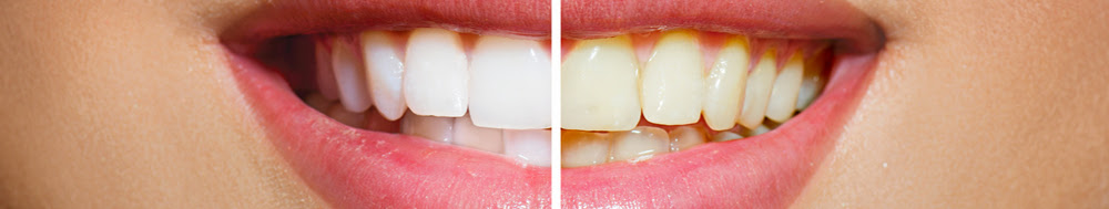 blanchiment parfait des dents