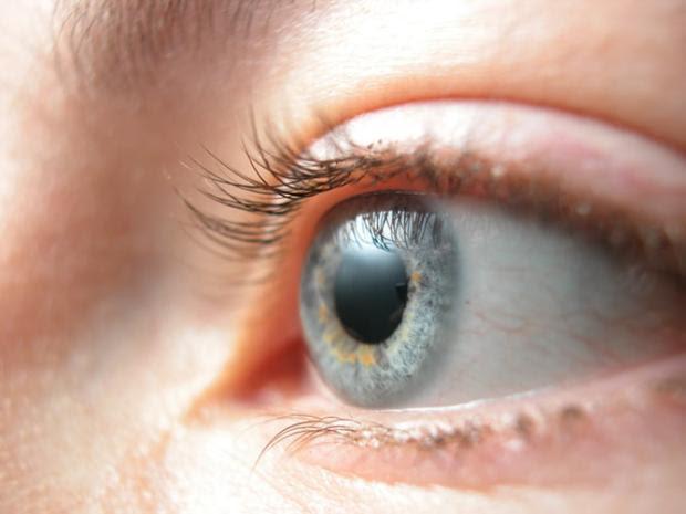 Cirurgia promete trocar a cor dos olhos de castanhos para azuis Patrick Rodrigues/