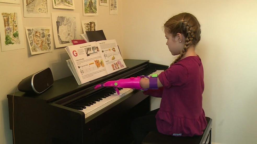 Próteses não são duradouras mas crianças crescem rápido e logo precisam de novos membros  (Foto: Reprodução)