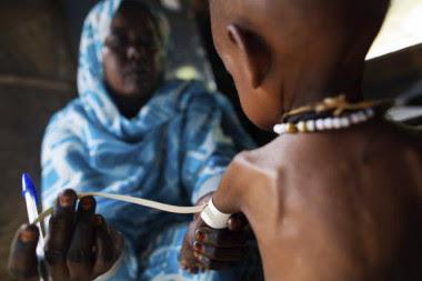 <p>Los trastornos asociados a la malnutrición se transmiten de padres a hijos. / Albert González (Unamid)</p>