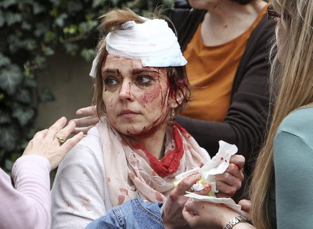 An injured woman tends to her wounds after the explosion.