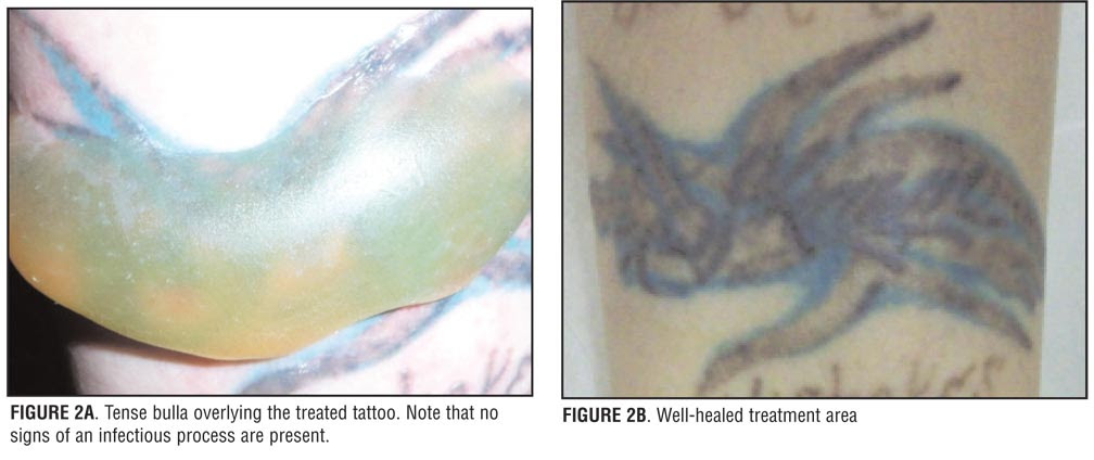 Complications After Laser Tattoo Removal ~ Download Tattoo Removal Tips
