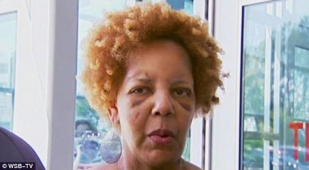 Yvonne still had bruises on her face while speaking to the media outside Gwinnett County Court in Georgia