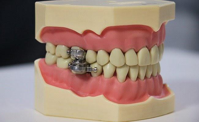 Радикальное устройство для похудения DentalSlim в прямом смысле закроет человеку рот