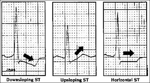 Askep nursing: TEHNIK PEMBACAAN EKG