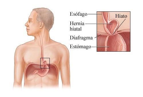 Consejos salud opini n es curable la hernia de hiato - Alimentos prohibidos para la hernia de hiato ...