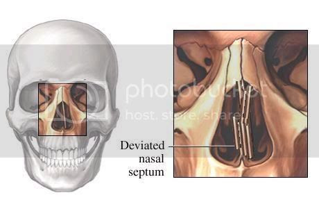 Wide Nasal Bones Before And After Photo Gallery