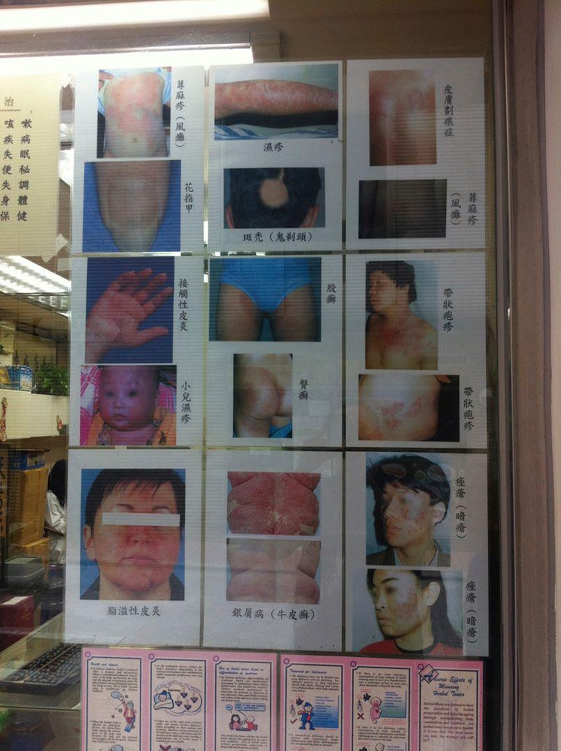 Freaky Ailment Photos in Hong Kong photo 2013-09-28132020_zps06df0246.jpg