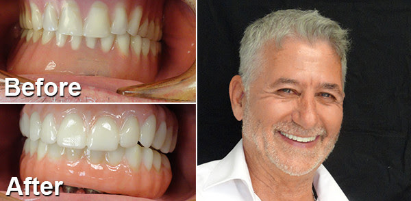 All On 4 Dental Implant System In Utica Ny Synergy2 Complete