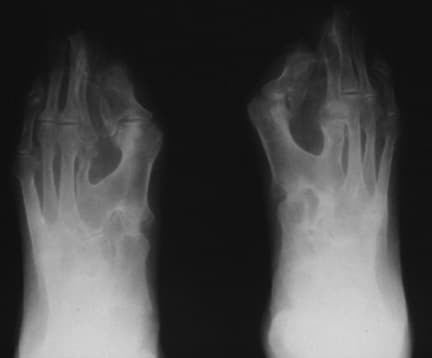 Note osseous syndactyly, fusion of interphalangea...