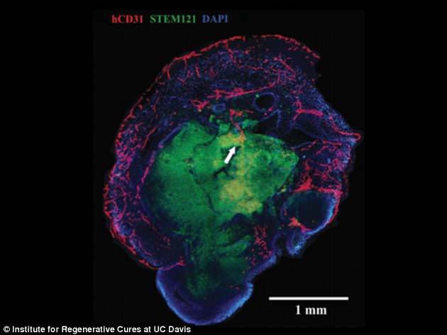 A stained cross-section of a brain organoid showing that blood vessels (in red) have penetrated both the outer, more organised layers and the inner core. This will allow larger organs to be developed in the future