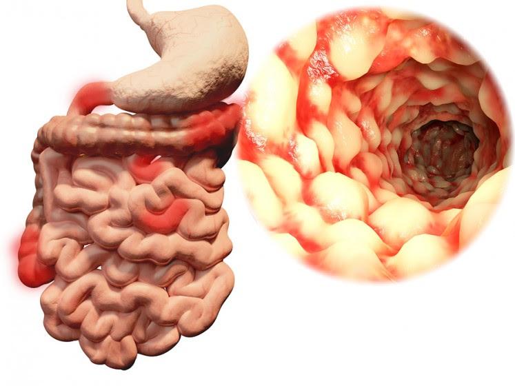 http://www.megabored.com/wp-content/uploads/2015/03/bigstock-Crohn-s-disease-83000321-747x560.jpg